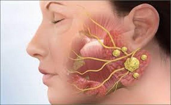Để phòng ngừa bệnh ung thư vòm họng, mọi người cần có lối sống cũng như kế hoạch ăn uống khoa học, lành mạnh.